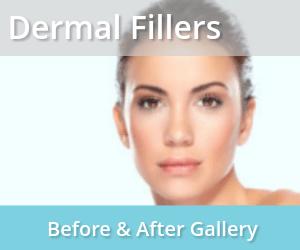 Dermal Fillers Long Beach | Injectables Los Angeles | Laser Skin