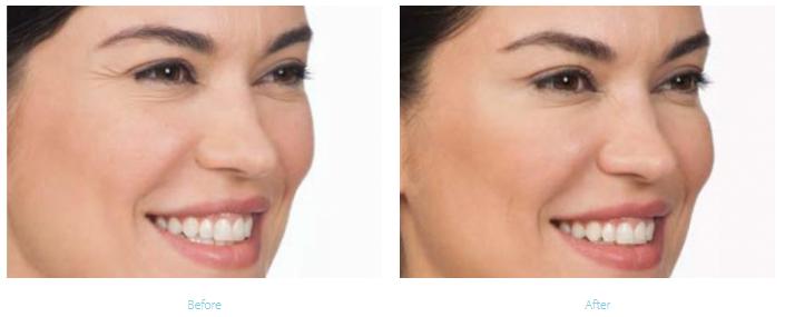 Botox Treatment Long Beach
